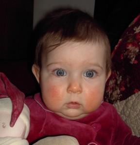 MA petite Charlotte aux joues rouges... poussées dentaires ?